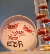 Settle Down. [No, not you…Erythrocyte Sedimentation Rate (ESR) ]