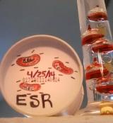 Settle Down. [No, not you…Erythrocyte Sedimentation Rate (ESR)]